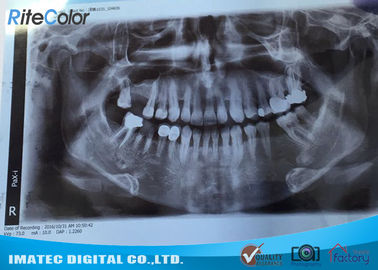 চীন 8*10 Inch Inkjet Printing Medical Film , X-ray Blue Medical Imaging Film for Epson L300 Printers পরিবেশক